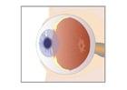 imagem corte seccional do olho