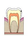 imagem evolução da cárie dental 2