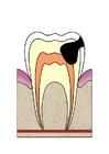 imagem evolução da cárie dental 4