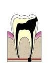 imagem evolução da cárie dental 5