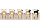 imagem evolução da cárie dental